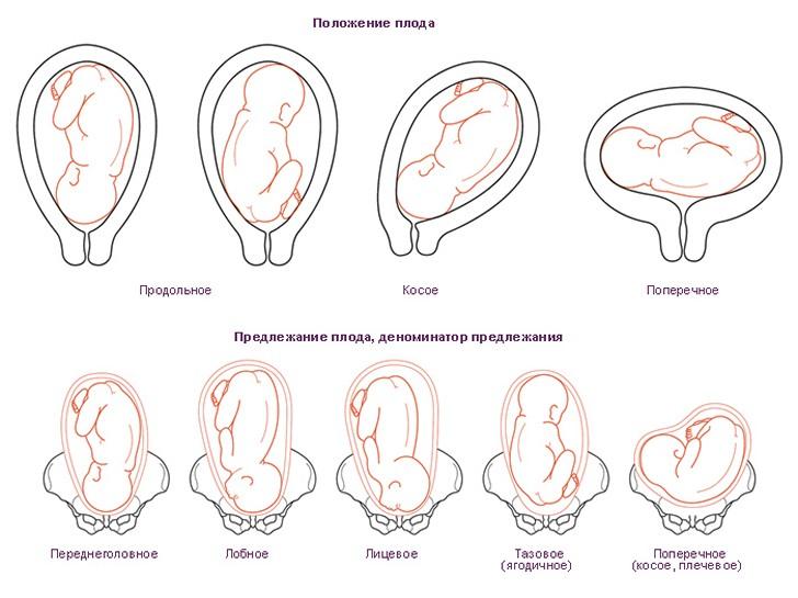 Как ребенок лежит в животе: каким должно быть положение плода на разных неделях беременности?