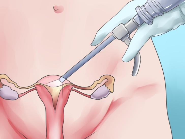 Выделения после установки и снятия пессария во время беременности: что делать?