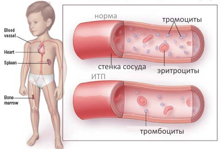 Причины тромбоцитопенической пурпуры у детей и методы лечения заболевания