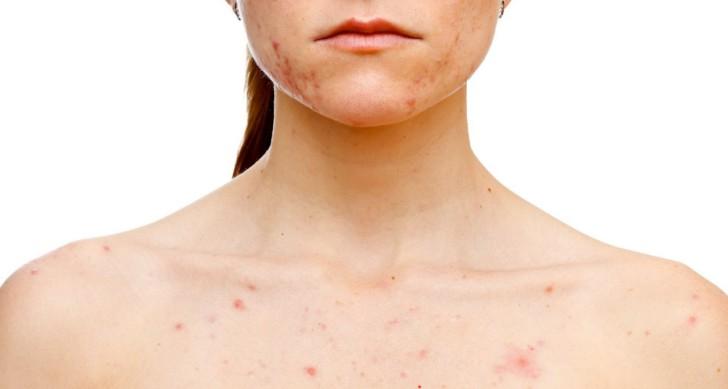 Почему после родов на коже разных частей тела появляются высыпания, похожие на крапивницу?