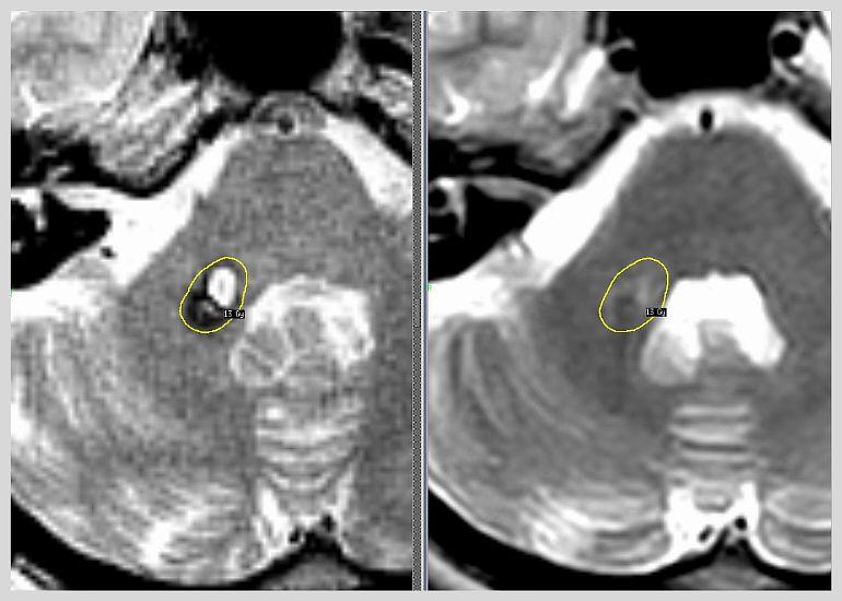 Что такое ангиома головного мозга