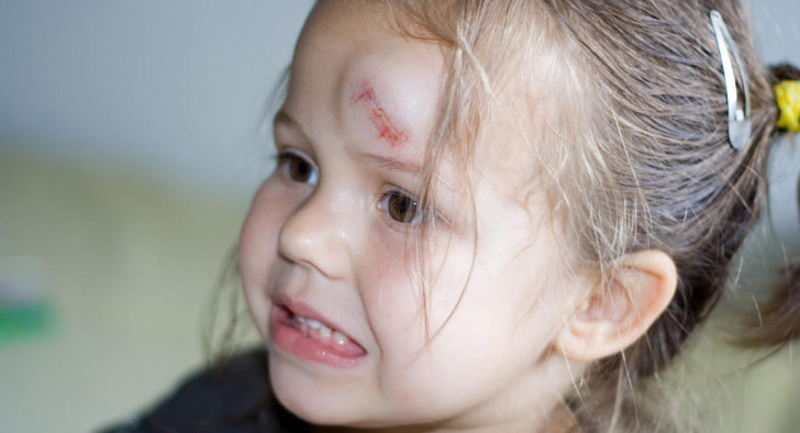 Что делать, если ребенок сильно ударился лбом и у него появилась шишка, через сколько времени проходит гематома?