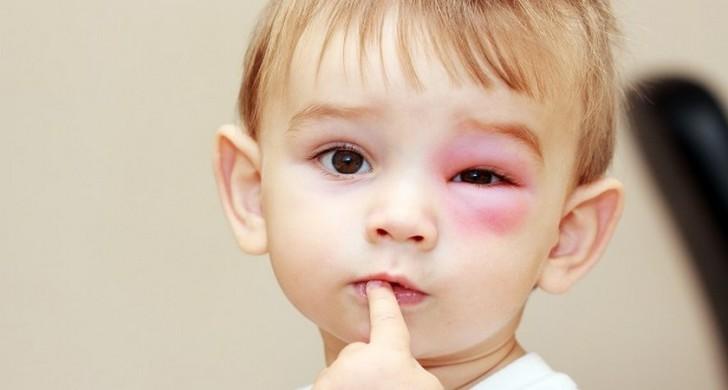 Что делать после укусов комаров у детей: как лечить опухоль и покраснение, чем снять зуд?