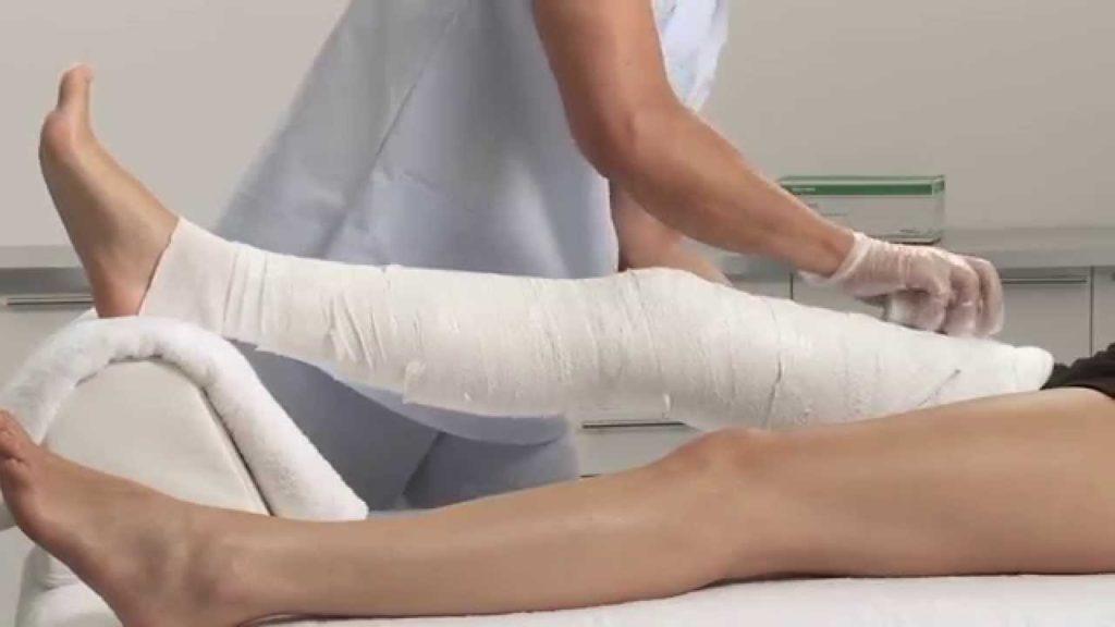 Гипс при переломе колена