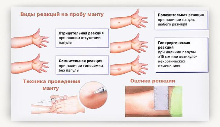 Манту: состав пробы, подготовка к прививке, оценка результатов и норма размера папулы у детей в таблице