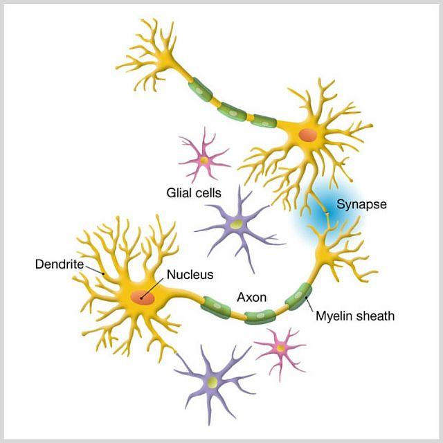Глиозные изменения головного мозга - супратенториальные, перивентрикулярные