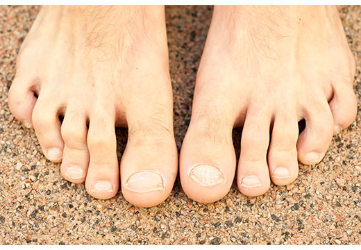 искривление пальце ног