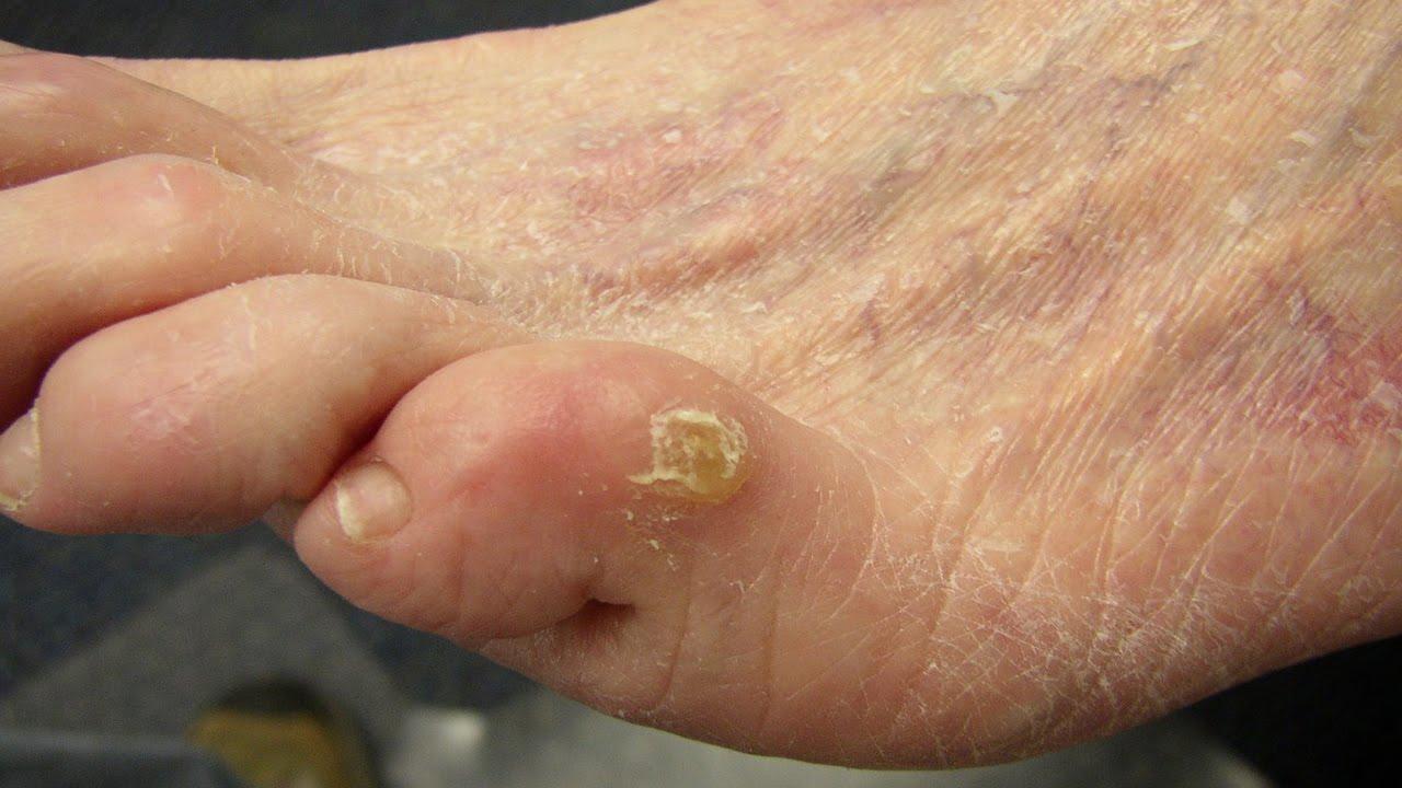 мозоль на мезинце ноги