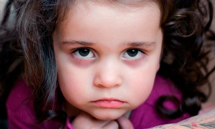 Синяки под глазами у ребенка - не отдельное заболевание, а симптом - чего именно, нужно разбираться