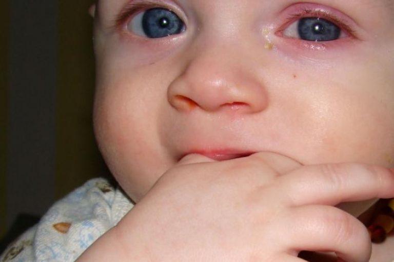 Симптомы и лечение гнойного конъюнктивита у детей в острой и хронической формах