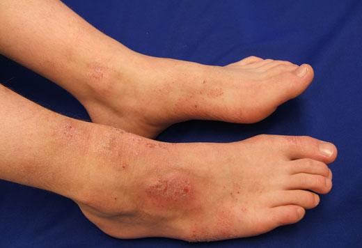 аллергия на ноге