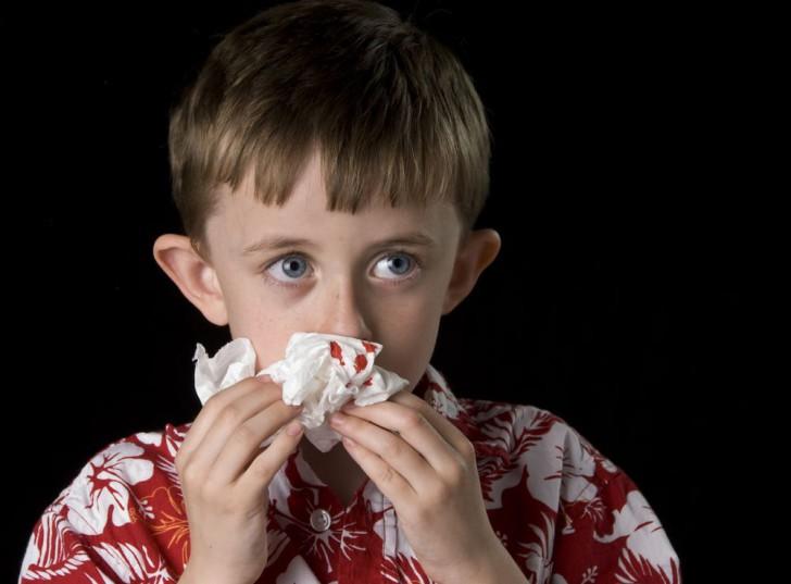 Признаки и симптомы перелома носа у ребенка: как определить наличие травмы после падения?