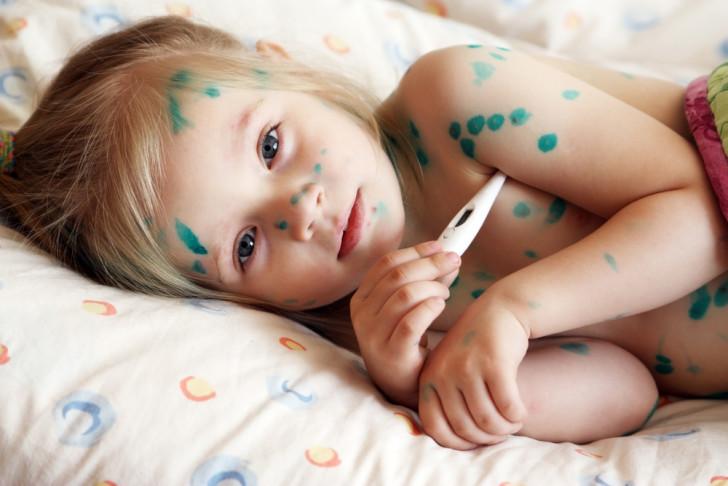 Лучшие лекарственные средства для лечения ветрянки у детей: Мирамистин, Виферон и другие эффективные препараты