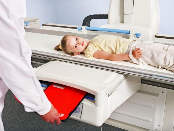 Лечение перелома ключицы у ребенка со смещением и без: наложение повязки, период восстановления и последствия