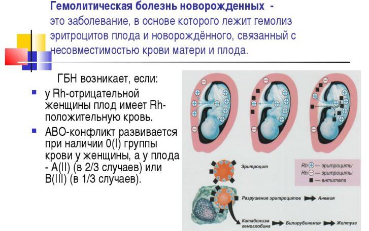 Гемолитическая болезнь у новорожденных по группе крови и резус-фактору: причины, последствия, лечение и профилактика