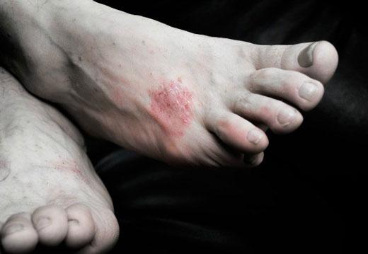 Ноги в высыпаниях