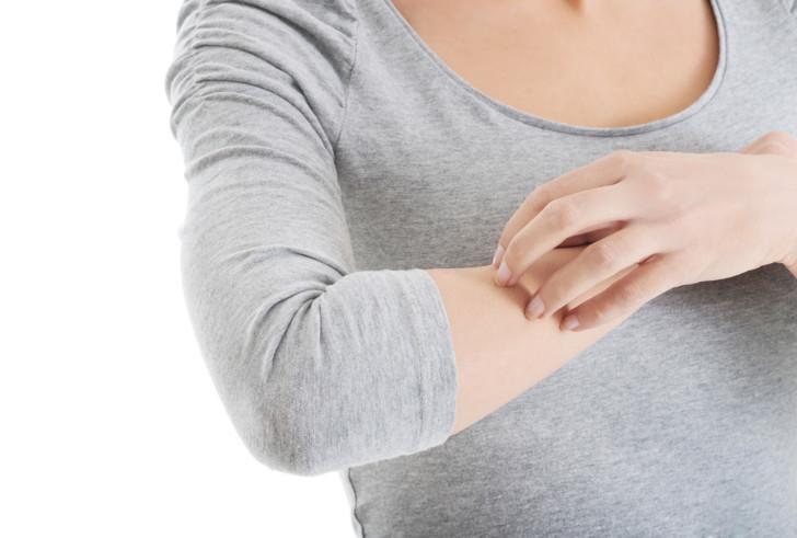 Чесотка у беременных: причины, симптомы, влияние на беременность и лечение