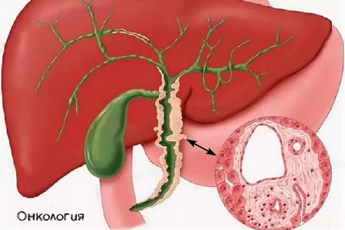 Опухоль желчного