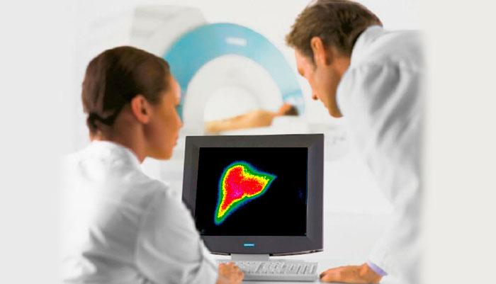 гепатобилиарная сцинтиграфия