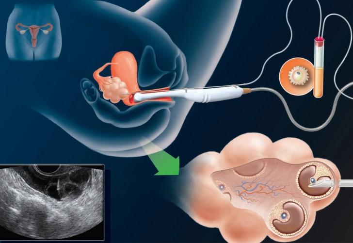 Стимуляция яичников медикаментозными и народными средствами для планирования беременности
