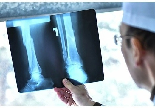 Рентген плоскостопия