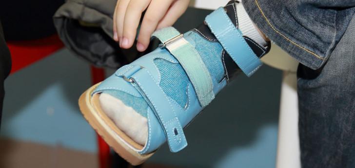 Симптомы болезни Эрлахера-Блаунта у детей с фото и методы лечения патологии